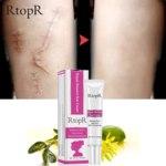 Крем от шрамов и рубцов Aliexpress RtopR Acne Scar Stretch Removal Remover Cream Skin Regenerating Face Cream Acne Spots Acne Treatment Whitening Black Dots Cream Skin Care фото