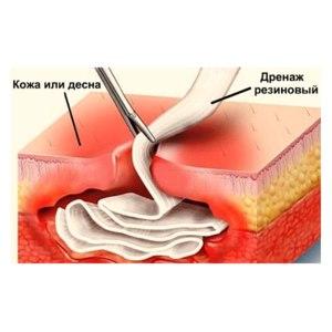 Дренаж после удаления зуба фото
