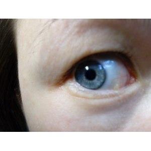 Операция по удалению кисты конъюнктивы глаза фото
