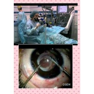 Операция по удалению катаракты и имплантация искусственного хрусталика фото