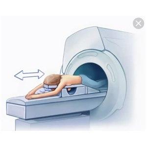 Магнитно-резонансная томография (МРТ) молочных желёз  фото