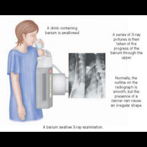 Рентген желудка с барием  фото