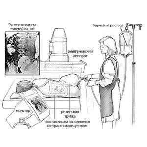 Ирригоскопия. Обследование толстого кишечника фото