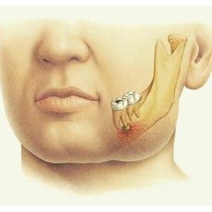 Операция по удалению флегмоны. фото