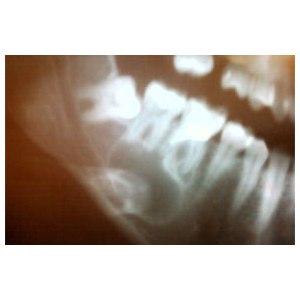 Удаление кисты зуба фото