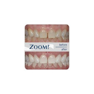 Отбеливание зубов по системе zoom фото