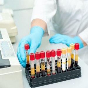 Анализ крови на токсоплазмоз (Toxoplasma) фото