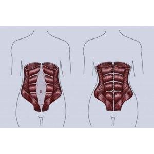 Операция по ушиванию диастаза (обтурационная герниопластика) фото