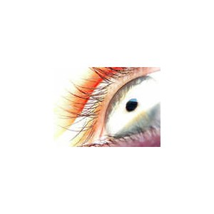 Методика лазерной коррекции зрения ЛАСИК / LASIK фото