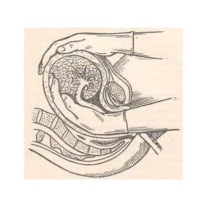 Ручное отделение плаценты после родов фото