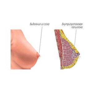 Операция по удалению внутрипротоковой папилломы молочной железы фото