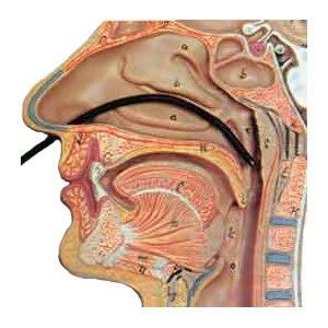 Назогастродуоденоскопия (ФГДС через нос) фото