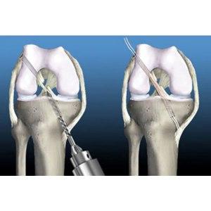 Изображение - Пластика пкс коленного сустава отзывы qfgMdPVkpQ3M3oODxDkdYw