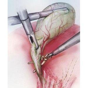 Лапароскопическая холецистэктомия. Удаление желчного пузыря при помощи проколов фото