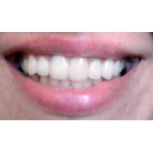 Эстетическая стоматология - художественная реставрация зубов фото