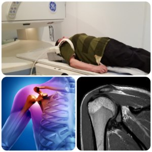 Магнитно-резонансная томография (МРТ) плечевого сустава фото