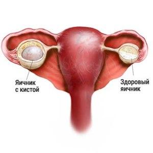 Операция по удалению кисты яичника в тюмени