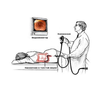 Колоноскопия фото