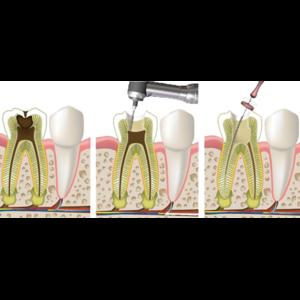 Депульпация (удаление нерва) или эндодонтическое лечение зуба фото