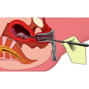 Хирургический аборт / Дилатация и кюретаж фото