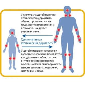 Общая неспецифическая гипоаллергенная диета по атопическому дерматиту фото