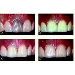 Внутриканальное  отбеливание зубов (Эндоотбеливание) фото