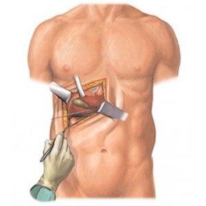 Холецистэктомия (полостная операция по удалению желчного пузыря)  фото