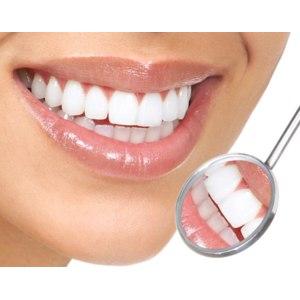 Глубокое фторирование зубов фото