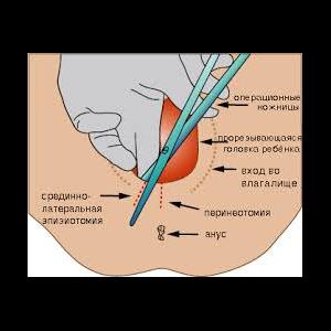 Эпизиотомия при родах фото