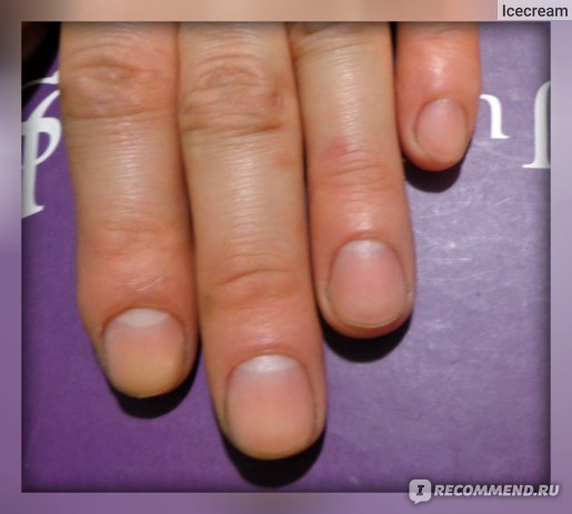 Гель для удаления кутикулы Sally Hansen Instant Cuticle Remover фото