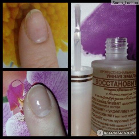 Укрепитель ногтей Умная Эмаль с витамином А и альфафруктовой кислотой фото