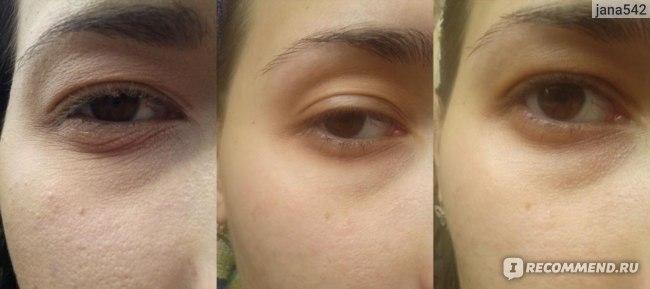 глазик до использования кремов вообще(пересушенная кожа)/ глазик после 2 недель использования shiseido/ глазик с кремом)