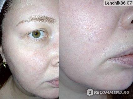 Тканевая маска для лица Estelare SuperFood Кумкват и Чиа  фото