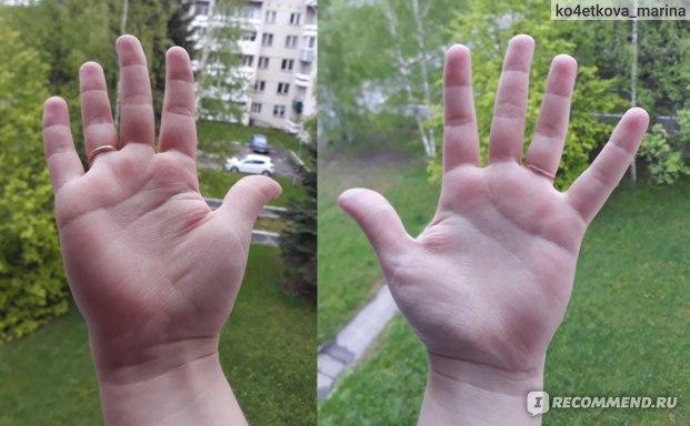 Руки, после попадания средства на кожу