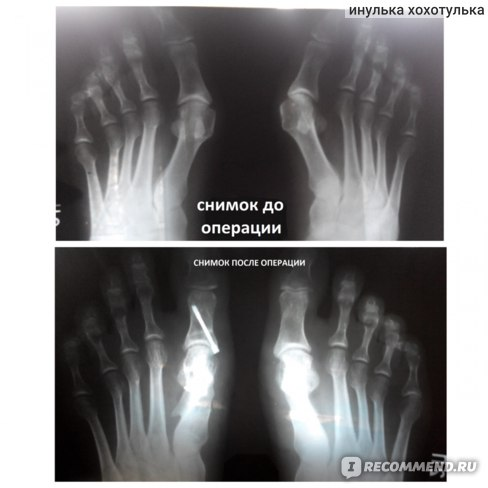 Hallux Valgus / Вальгусная деформация первого пальца стопы фото