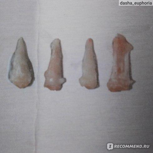 то, что осталось от верхних зубов.одни корешки.