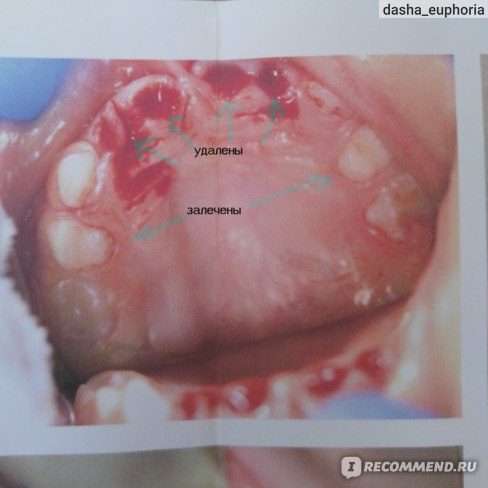 верхняя челюсть после лечения (снимок врача)