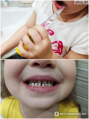Зубная щетка D.I.E.S. С мигающим таймером фото