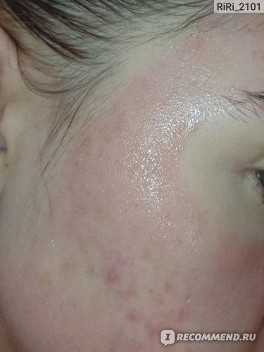 Пилинг для лица OZ! OrganicZone с АНА-кислотами для жирной и проблемной кожи фото
