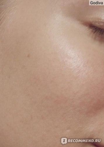 Голая кожа