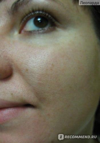 Комбинированная кожа с расширенными порами в Т-зоне