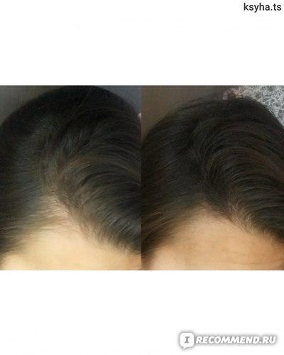 Загуститель волос MinoX Пудра камуфляж MinoxHairMagic фото