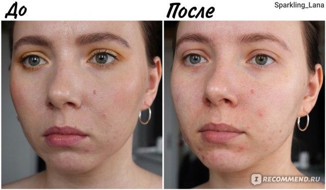 Розовая мицеллярная вода для снятия макияжа Eveline 3 в 1 фото