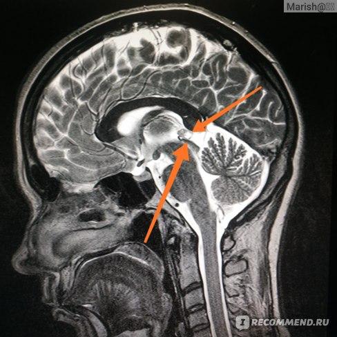 Киста эпифиза снимок МРТ