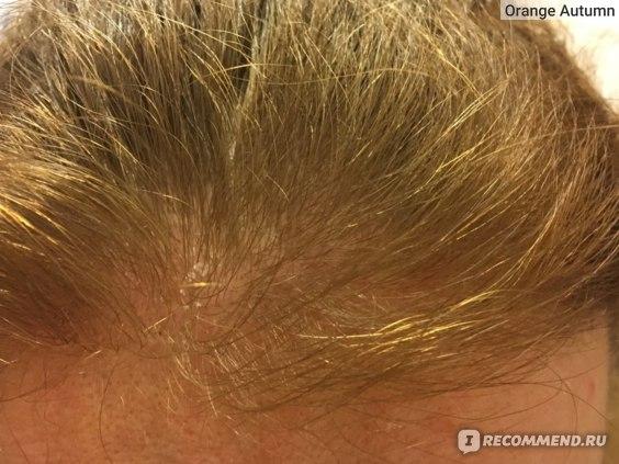 """Маска для волос Mirrolla Сульсеновая паста """"Форте"""" против перхоти фото"""