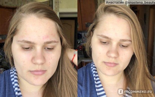 Лицо до/ после маски
