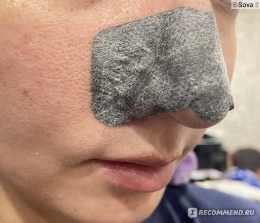 Очищающие полоски для носа Пропеллер с активированным углем фото