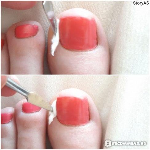 Как предотвратить врастание ногтя. Вросший ноготь.