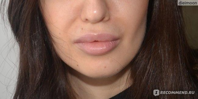 после увеличения губ