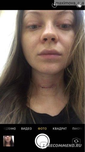 Первая неделя после операции